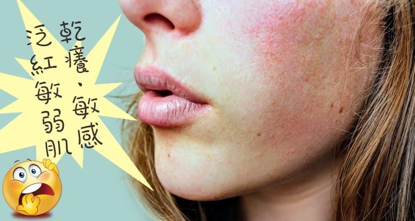 敏弱肌是什麼?選擇合適的敏弱肌膚保養品,呵護脆弱敏感肌膚